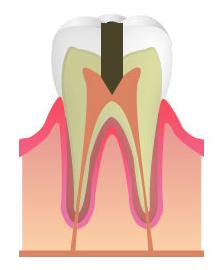 C3:神経まで達したむし歯