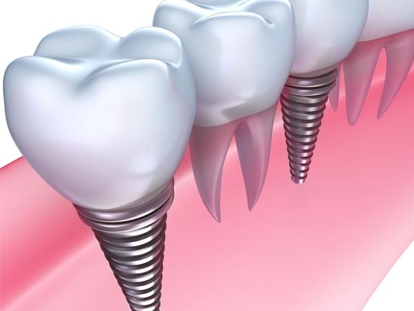 八千代市・村上の歯医者・歯科みどりかわ歯科のインプラント治療