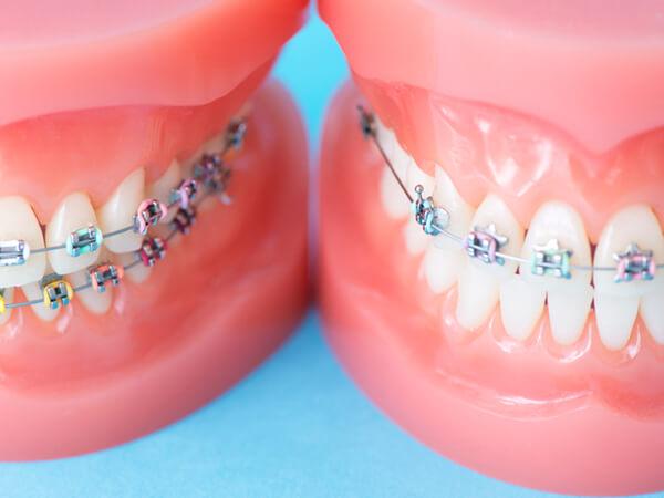 八千代市・村上の歯医者・歯科みどりかわ歯科の大人の矯正治療